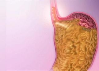 Beberapa Cara Untuk Redakan Tukak Lambung Tanpa Obat Ranitidin