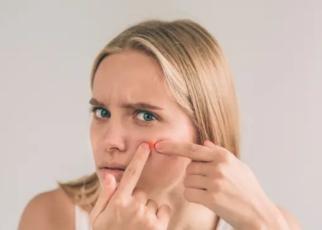 Beberapa kondisi kulit ini bisa gambarkan kondisi kesehatan anda