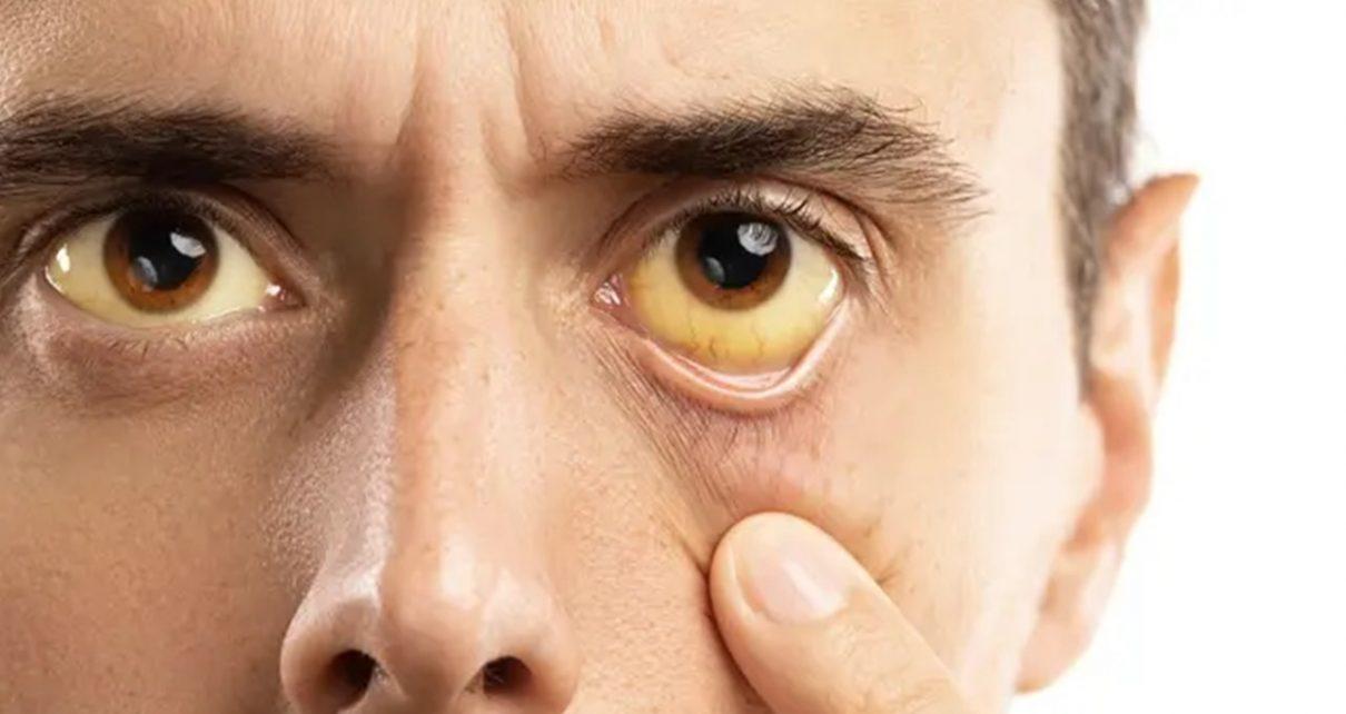 Gejala Penyakit Kuning pada Orang Dewasa, Kenali Penyebabnya